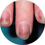 Черные пятна под ногтями
