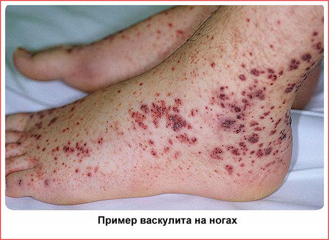 Васкулит – что это за болезнь? Причины, виды и формы васкулита (геморрагический, аллергический, системный, кожный и др.), симптомы и диагностика заболевания, фото