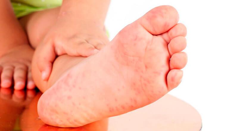 Диагностика и лечение сыпи на стопах у детей