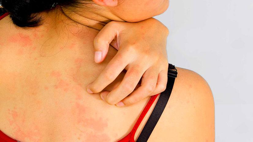 Аллергия на коже ног красные пятна чешутся лечение