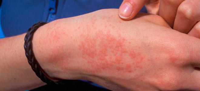 аллергии у взрослых