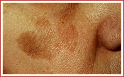 Токсический ретикулярный меланоз