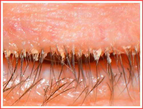 Фото демодекоза на ресницах у женщин