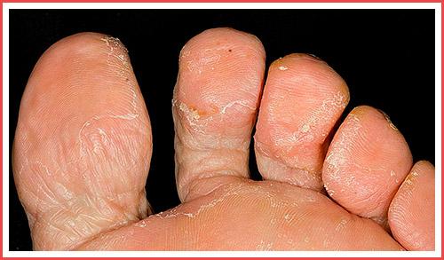 Эпидермофития ног