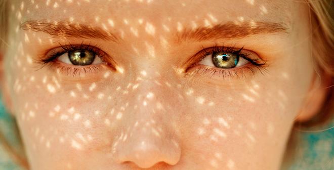 Перечень лекарств, растений и продуктов, вызывающих симптомы аллергии на солнце