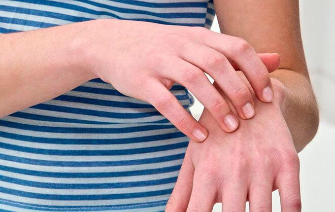 Облезает кожа на руках