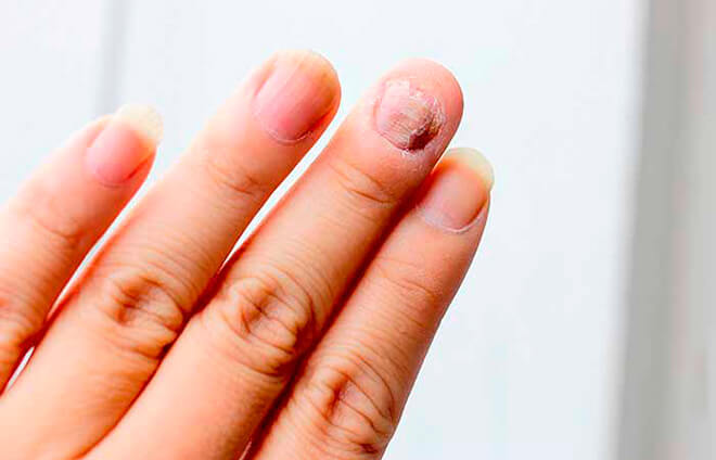 Средство от грибка ногтей на руках
