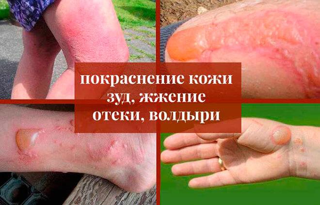 Симптомы ожога от борщевика