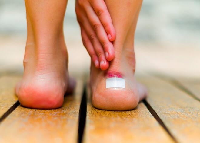 Причины появления волдырей на пальцах ног