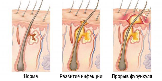 Стадии и симптомы развития чирья