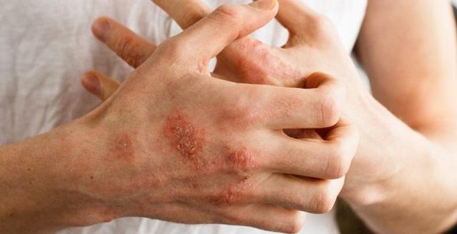 Признаки начальной стадии псориаза на руках