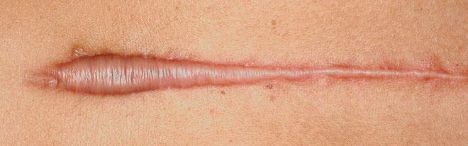 Келоидные шрамы