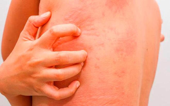 Симптомы течения аллергического дерматита