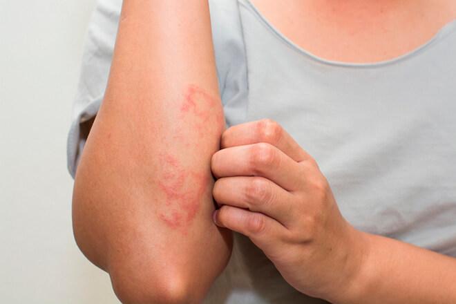 Причины заболевания и типы аллергенов