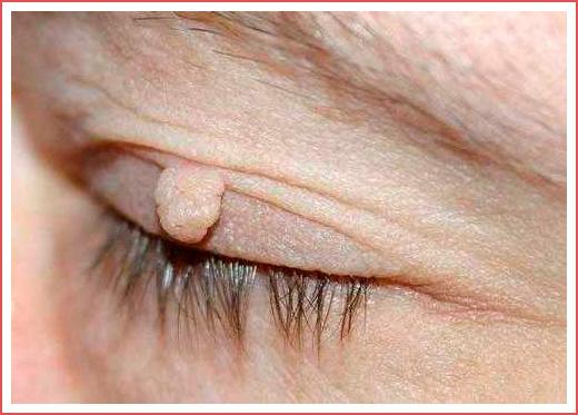 Как выглядит папиллома на лице, фото