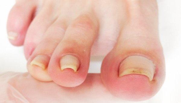 Причины образования вросших ногтей