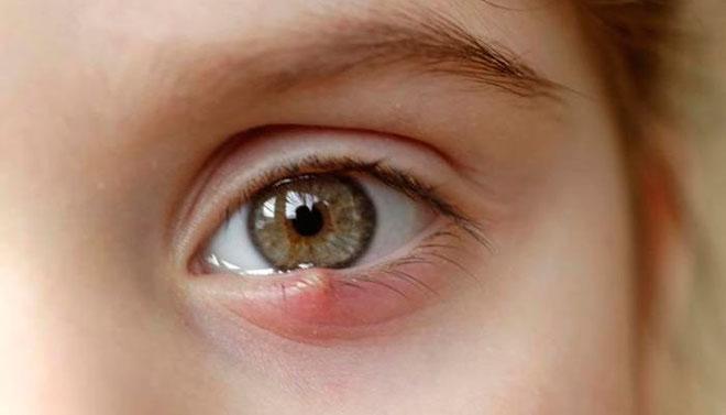 Особенности лечения фурункула на глазу у ребенка