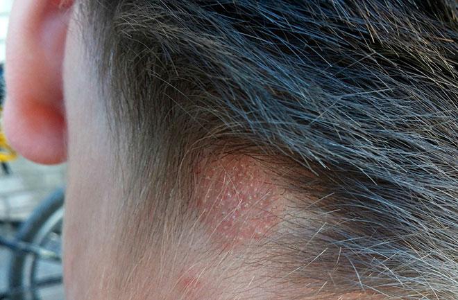 Первые признаки и симптомы лишая на голове