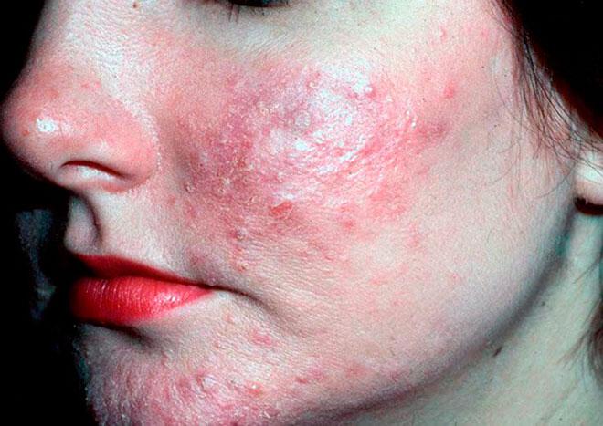 Симптомы и признаки демодекса на лице